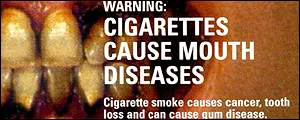 Smoking Causes Mouth Diseases